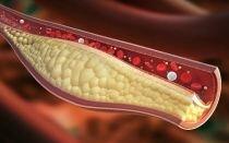 Аналоги и заменители Эналаприла, не вызывающие кашель: чем можно заменить препарат