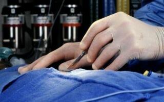 Аортальный стеноз (клапана и устья аорты), показания к лечению без операции
